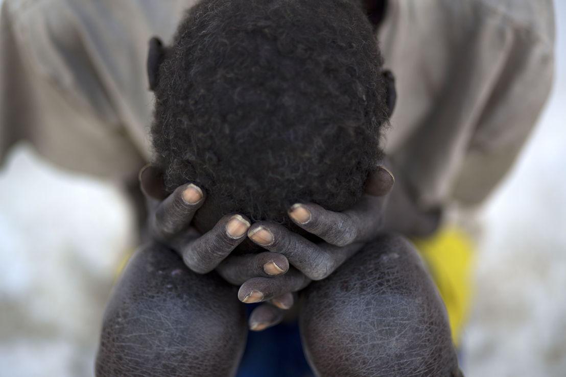 © Karel Prinsloo<br/>Le conflit au Soudan du Sud rend les populations plus vulnérables aux maladies tropicales comme le Kala Azar. Le risque d'infection est plus important pour les personnes déplacées par les combats dans des zones où la maladie est plus présente et la malnutrition diminue leur capacité à lutter contre l'infection. Beaucoup de centres de santé sont fermés et trouver un traitement est de plus en plus difficile.