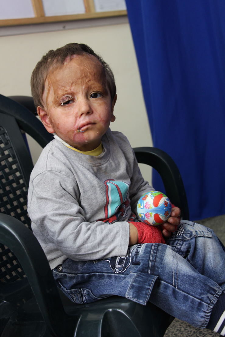 Mohammad 3 years old and his grandmother at Khan Younis clinic for dressing care and physio, follow up on severe burns injuries, domestic accident, a neighbour threw boiling oil out of the window and the little boy was outside. First at Nasser Hospital where he was immediately transferred to the ICU and then they transferred him to Jerusalem where he got some skin grafts. And after coming back from Israel we came with him to the MSF clinic in Khan Younis, and was taken care of the team. He was also in surgery in the MSF surgical round in April 2015. The MSF surgical team operated on his upper eye lid, his right arm, and for the mouth opening. We are now regularly in the MSF clinic for physiotherapy, dressing care, burn rehabilitation, because he just came out of surgery. © Susanne Doettling/MSF
