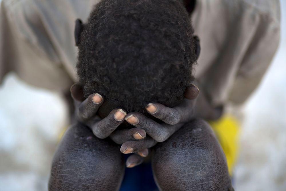 System identifier: MSB17339<br/>Title: SOUTH SUDAN KALA AZAR<br/>Photographer / cameraman: Karel Prinsloo<br/>Countries: South Sudan<br/>Description: A kala azar patient rests at a Médecins Sans Frontières hospital in Lankien, South Sudan, 13 January 2015.