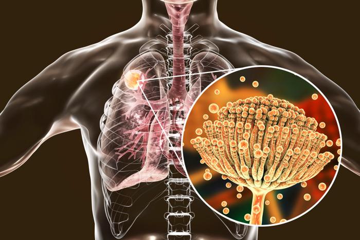 Drie keer meer kans op dodelijke schimmelinfectie bij ernstige griep