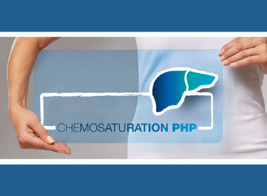 CHEMOSAT®: New data for patients with metastatic ocular melanoma