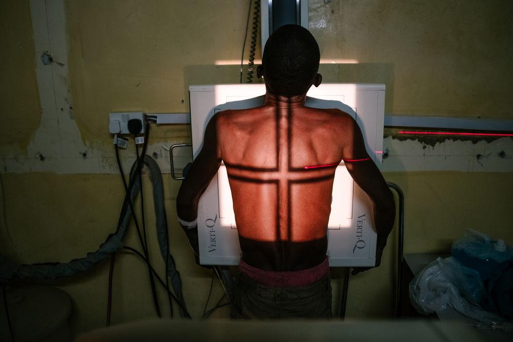 Un paciente durante una sesión de rayos-X en el hospital de Nsanje, Malaui. Isabel Corthier /MSF
