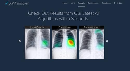 인공지능 기반 헬스케어 스타트업 '루닛', 미국서 의료영상 진단 온라인 소프트웨어 '루닛 인사이트' 공개