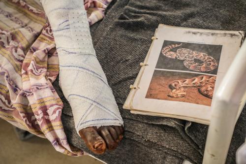 MSF : Seuls les antivenins peuvent soigner les morsures de serpents.