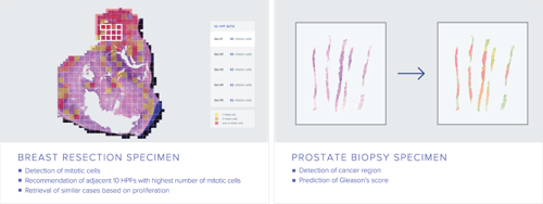 Lunit to showcase AI-powered products at USCAP 2017
