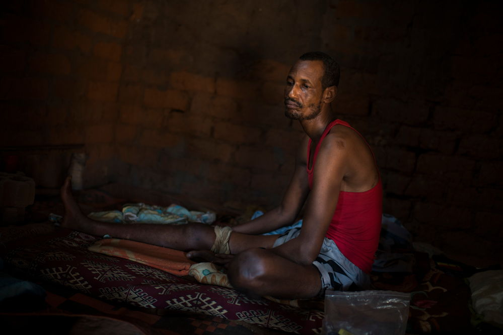 Michel, 38,. He was shot on 21 November during the Gobolo neighbourhood attack. . He is now stuck in the enclaved neighbourhood of Bria that he can't leave. Photographer: Colin Delfosse/Ouf of Focus