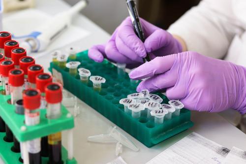 VUB vreest gemiste kansen voor wetenschappelijk onderzoek en innovatie door afschaffing duolegaten