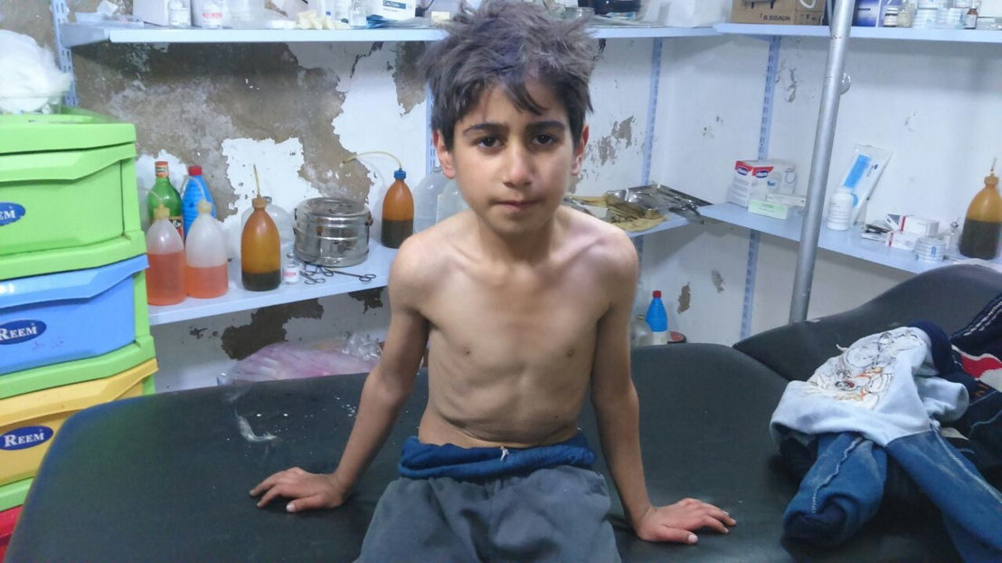 Starving boy in Syria