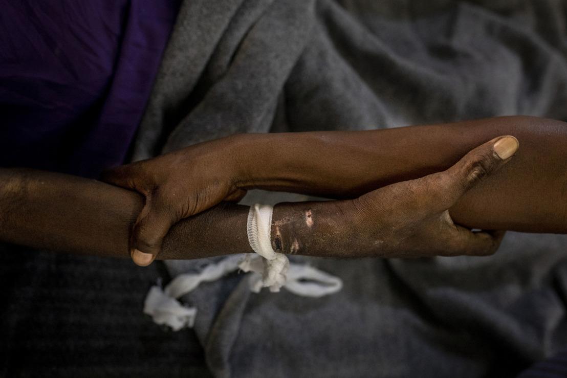 Rapport MSF : « Il est urgent de renforcer et revoir le financement contre le VIH et la tuberculose »