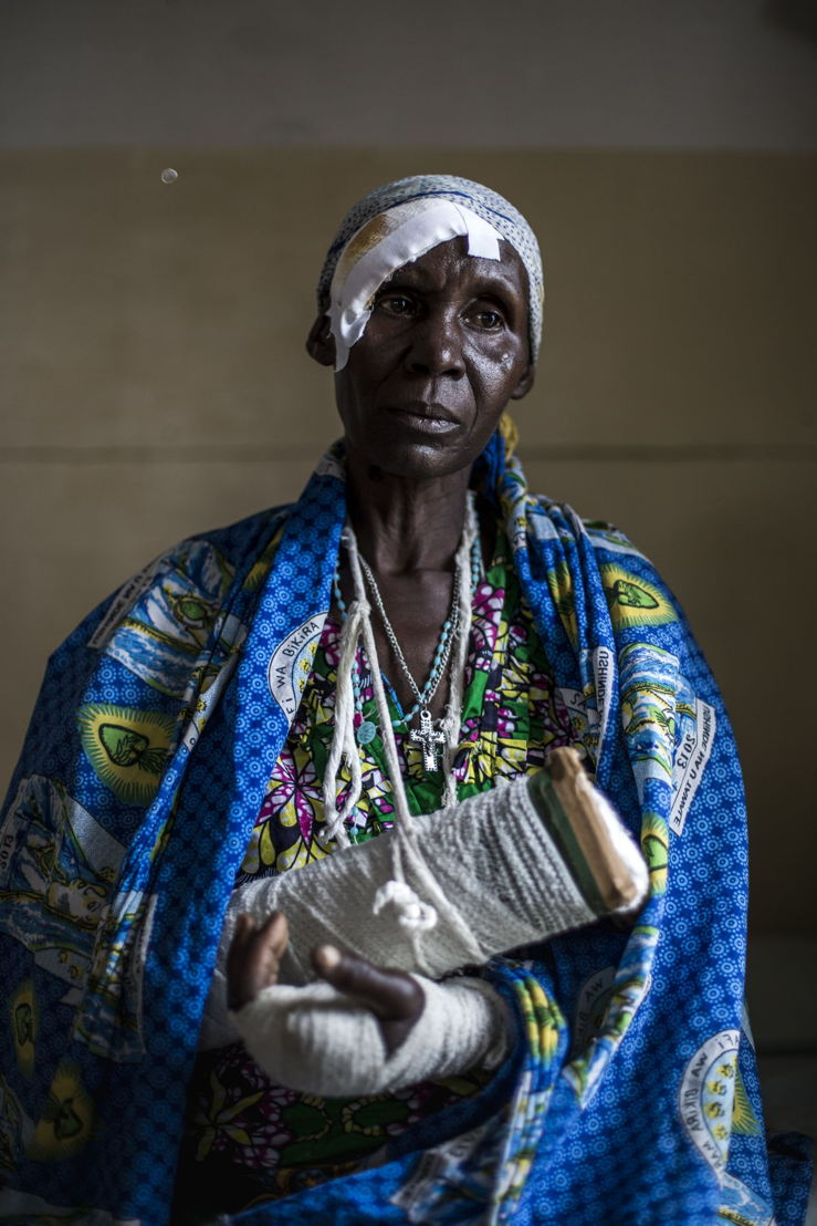 Alphonsime Mojetha (54) recovers in a hospital room on 2 March 2018 in Bunia. After an attack on her village she lost her two children and suffered severe machete lacerations to the back of her head, her arms and her hands. She hid in the bush for two nights before making her way to Bunia to find help. Fighting in Ituri province has left thousands of Congolese displaced and some 100 have lost their lives. PHOTO/JOHN WESSELS