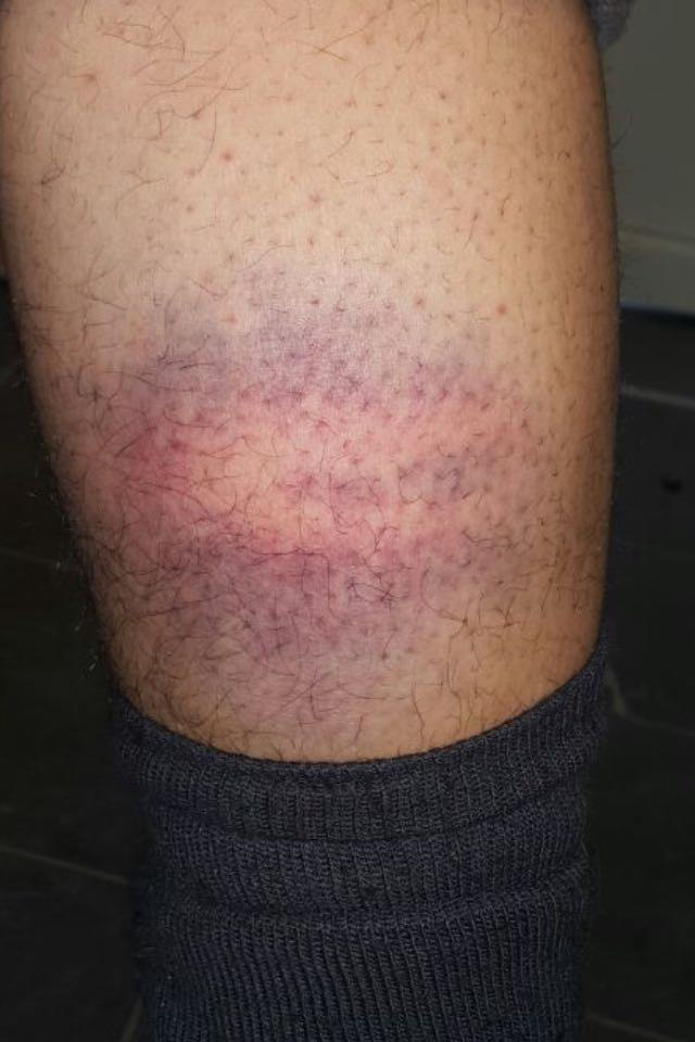 Alleged Police Abuse On The Hungarian Border