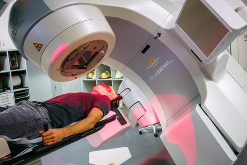 UZ Leuven zet nieuwe software in voor preciezere bestraling van uitzaaiingen in de hersenen