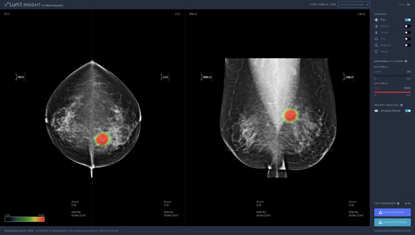 Preview: Lunit to Showcase AI Solution for Breast Cancer at SBI 2019